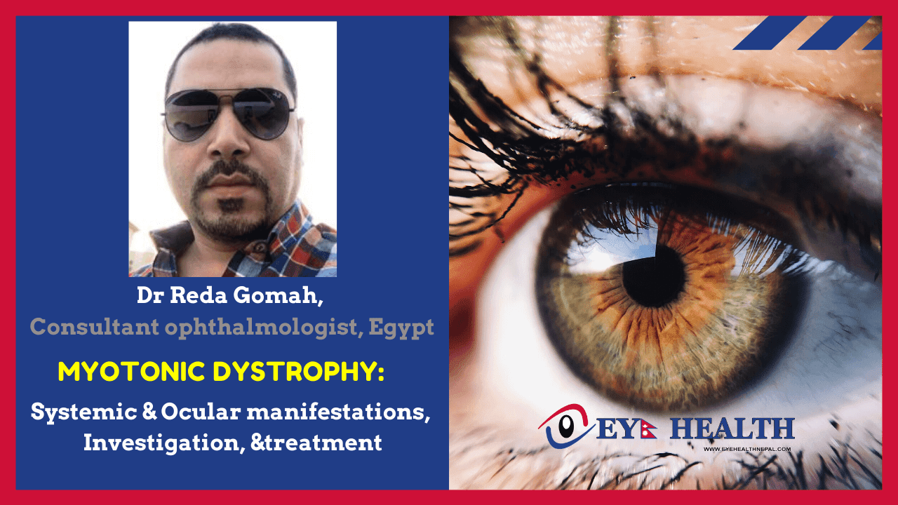 Myotonic Dystrophy Systemic and Ocular manifestations, Investigation, and treatment
