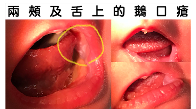 兩頰及舌頭上的鵝口瘡