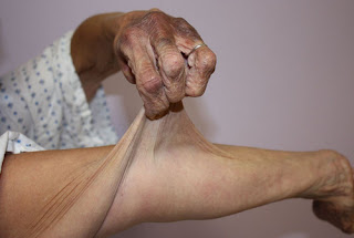 Ehlers Danlos syndrome pictures The skin is translucent and prone to tear and bruising.picture
