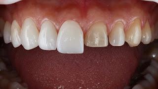 Zirkonyum Kaplama ve estetik diş kaplama