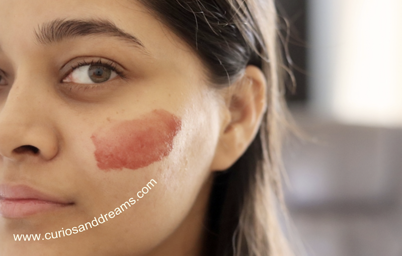 How To Get Rid Of Pimples, How To Remove Pimples, How To Reduce Pimples