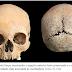 Arqueólogos revelam terrível mutilação punitiva de uma mulher na Inglaterra Anglo-Saxã