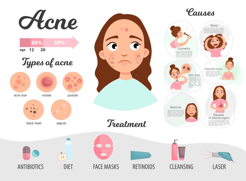 Diet To Get Rid Of Acne In A Week