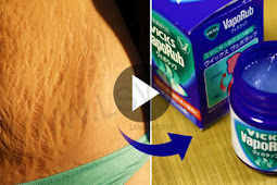 Vicks VapoRub Can Help You to Remove Your Stretch Marks! Check Here How!