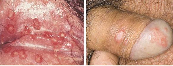 Nama Obat Herpes Genital Di Apotik