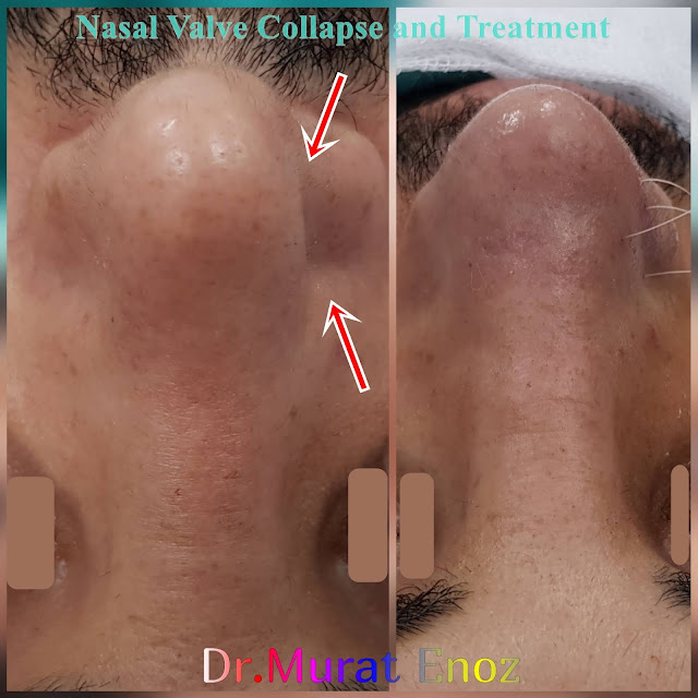 Nasal Valve Collapse and Treatment