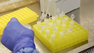 Bahia registra 616 casos de Covid-19; 146 pacientes estão curados da doença