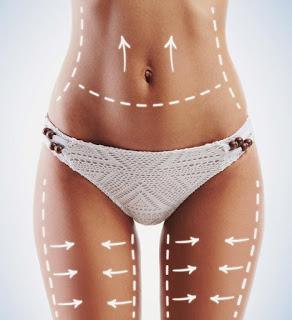 Historia Liposucción