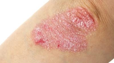 macchie della pelle per psoriasi