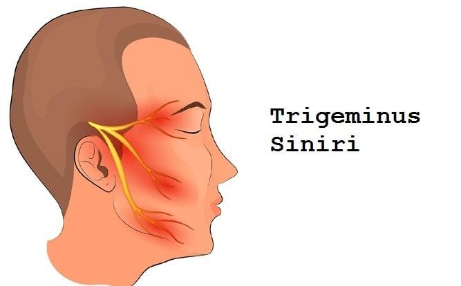 Trigeminus Siniri