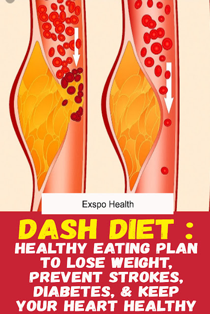DASH DIET: HEALTHY EATING PLAN TO LOSE WEIGHT, PREVENT STROKES, DIABETES, & KEEP YOUR HEART HEALTHY