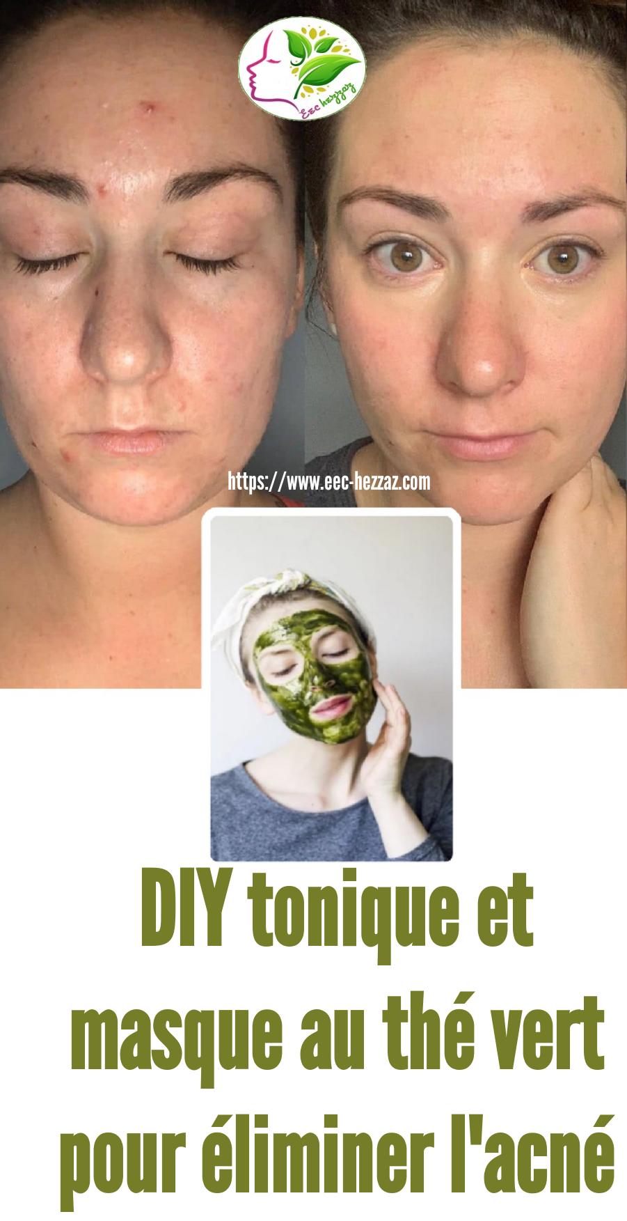 DIY tonique et masque au thé vert pour éliminer l'acné