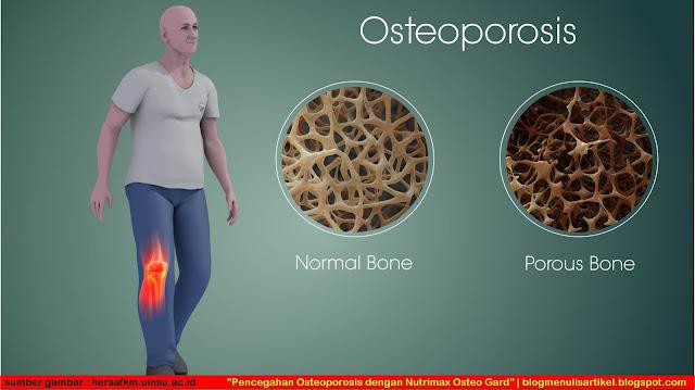 Pencegahan Osteoporosis dengan Nutrimax Osteo Gard