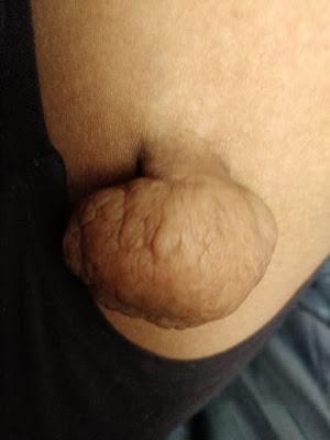Pengalaman Buang Skin Tag or Lebihan Kulit di Premier Clinik Puchong