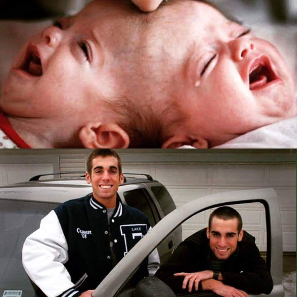 See Grown Up Photo Of The Conjoined Twins Separated By Dr -8929