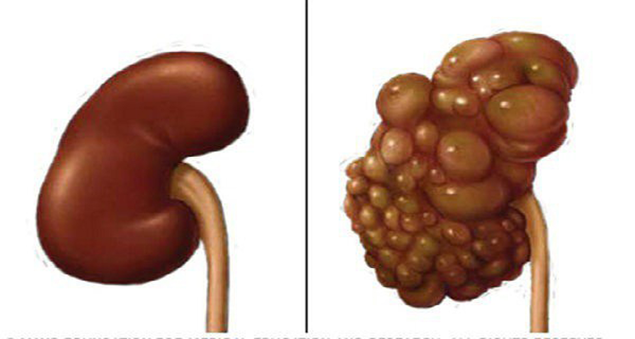 If You Want to Protect You Kidneys Don't do This!