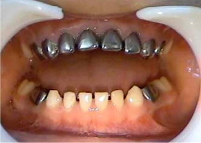 CASO CLÍNICO: Alargamiento de corona clínica en dientes anteriores primarios severamente destruidos