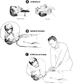Cardiopulmonary resuscitation in Assamese