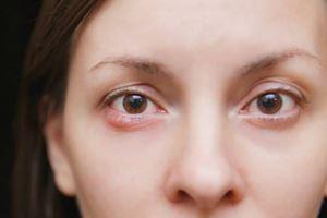 Mata Bintitan Mengganggu? Coba Trik Alami & Sederhana Ini