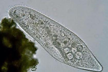 Astri mengamati mikroorganisme Pratista yang diambil dari air kolam sekolah. Hasil pengamatannya dengan mikroskop tampak seperti gamabr berikut. Termasuk kelas apakah organisme tersebut dan apa alasannya?