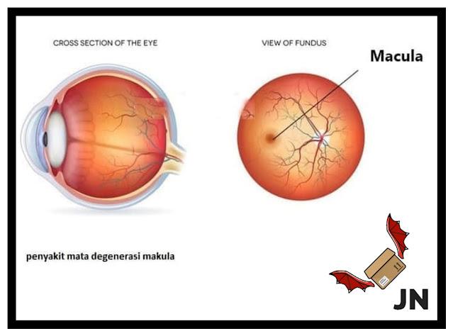 Penyakit Degenerasi Makula