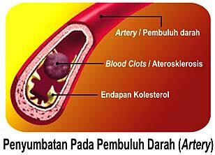 Obat Penghilang Kadar Lemak Dalam Darah