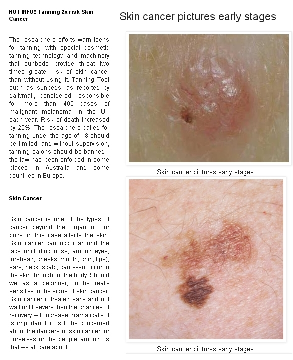 Stages of skin cancer melanoma  Jill scott insomnia