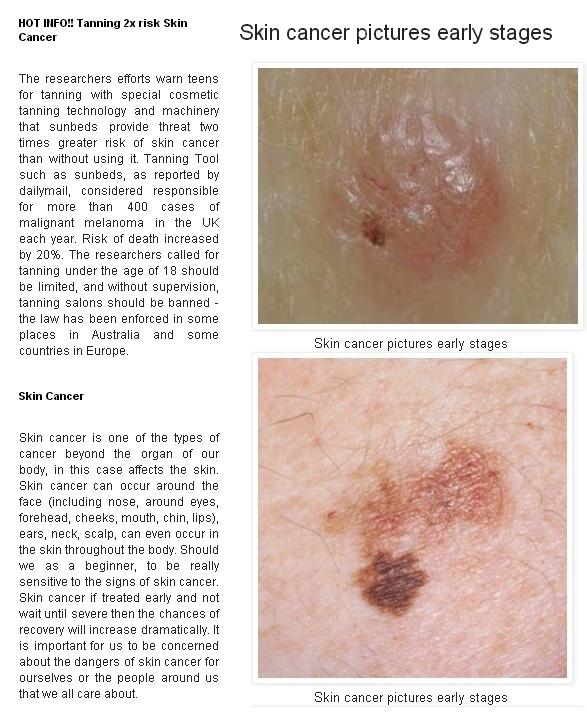 Stages of skin cancer melanoma  Jill scott insomnia