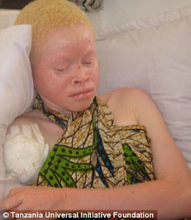 Hunted down like animals and sold by their own families for $75,000: Tanzania's albinos hacked apart by witchdoctors