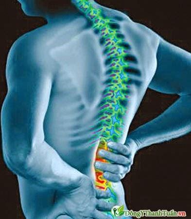 Bị đau lưng là bệnh gì