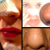 Step by Step On How to Remove Blackheads Overnight with Toothpaste and Salt