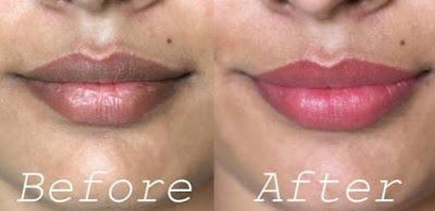 cara alami menghilangkan bibir hitam dengan baha-bahan alami