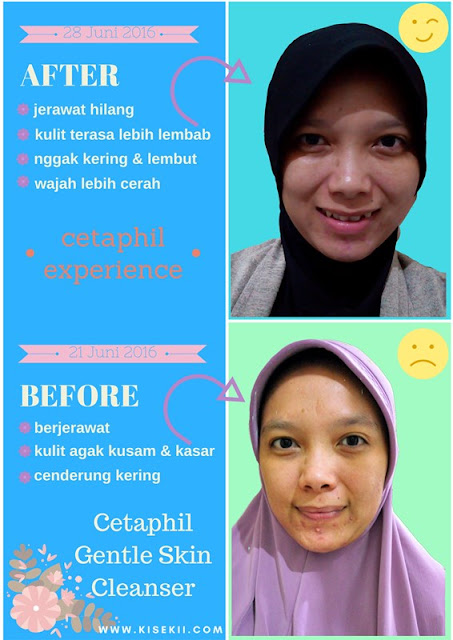 cetaphil-experience-review