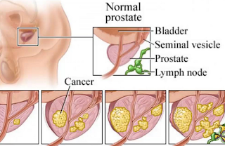 Determine the characteristics of prostate cancer
