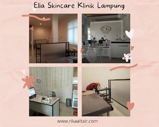 ella-skincare-klinik-lampung
