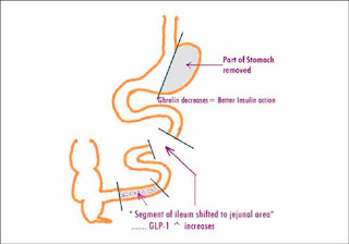 Gastric Bypass Surgery in Hyderabad