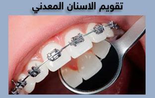 اسعار تقويم الاسنان في المدينة المنورة