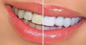 8 Tips Memutihkan Gigi Secara Alami Yang Efektif