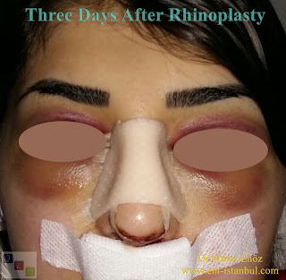 Three Days After Rhinoplasty - Healing