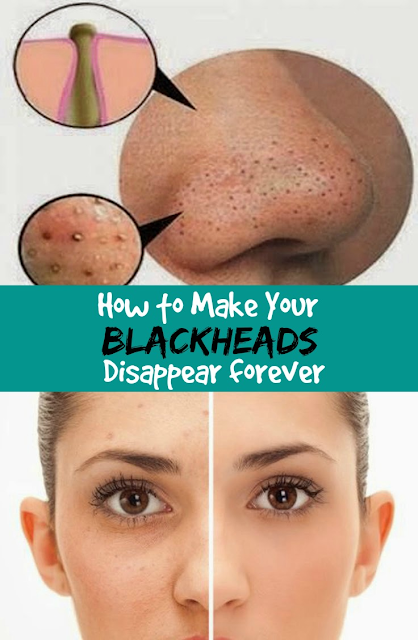 How to Make Your Blackheads Disappear forever