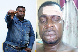 Save me from depression – Baba Fryo cries out to govt