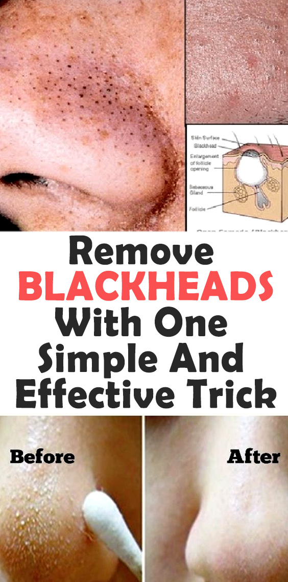 home remedy to remove black heads
