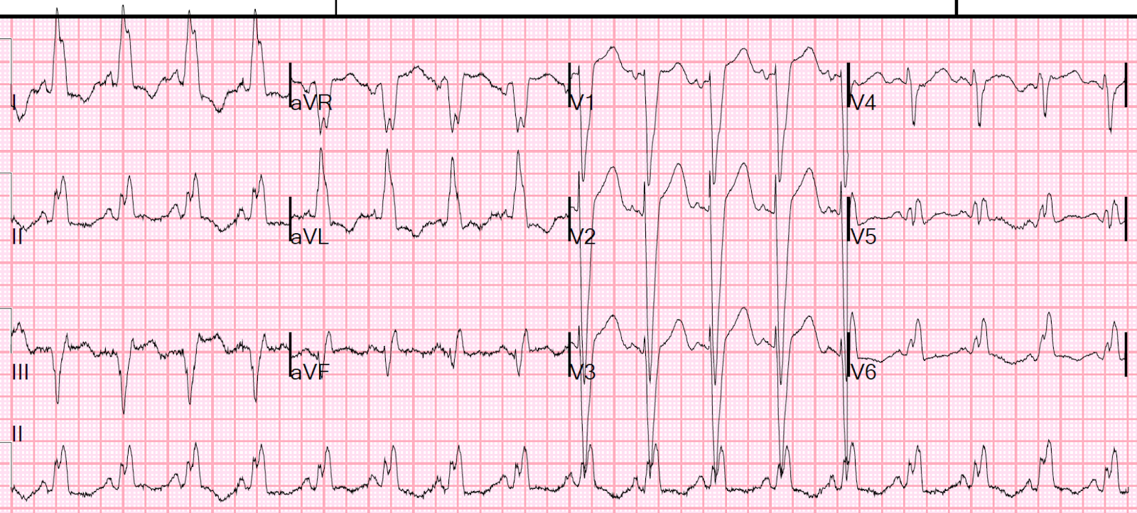 Dr Smiths Ecg Blog Wide Complex Tachycardia With Fusion And