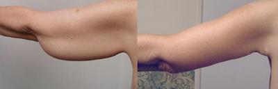 Cambio despues de una braquioplastia cirugia estetica de brazos Guadalajara Mexico