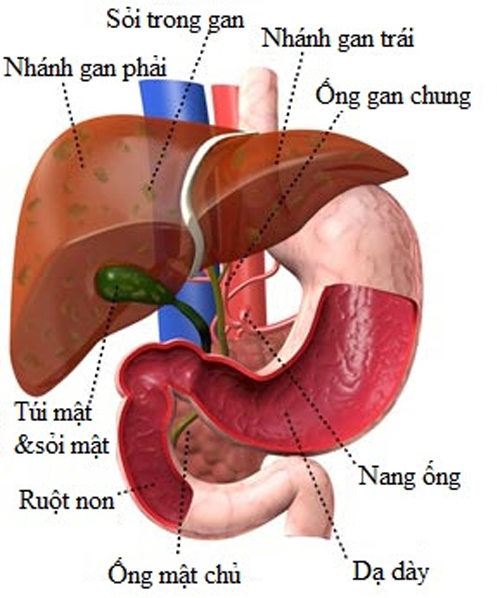 Bệnh sỏi trong gan và cách điều trị.