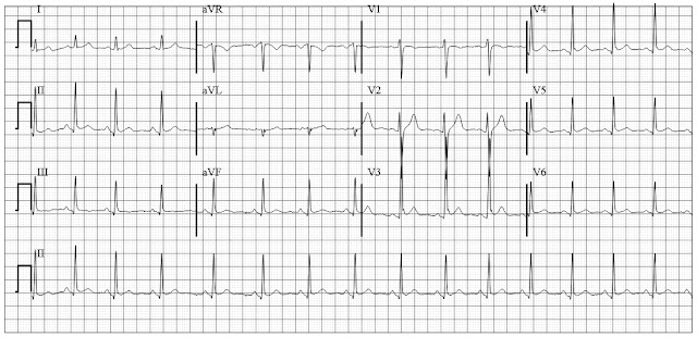 Normal variant early repolarization
