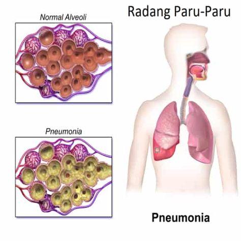 Cara Mengobati Radang Paru-paru Secara Alami