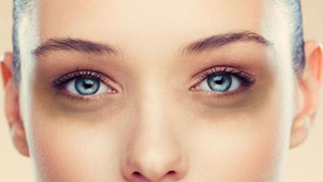 8 cara sederhana menghilangkan mata panda