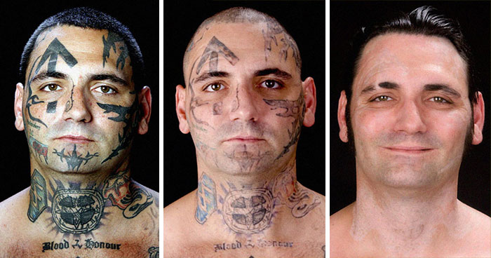 Man Gets His Racist Tattoos Removed After Becoming A Dad