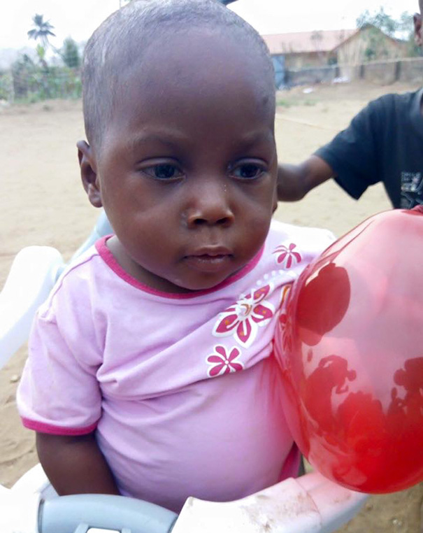 2-Year-Old 'Witch Child' Who Was Left To Die Makes Stunning Recovery - The results were stunning